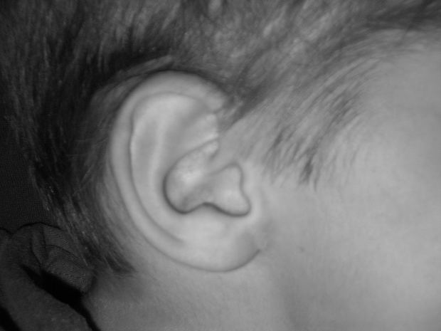 耳鳴りの原因はストレスかも?「ピー」「ボー」と音がする場合